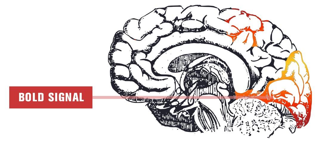 brain bold signal fmri