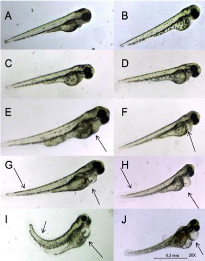 zebrafish-cannabinol-malformations