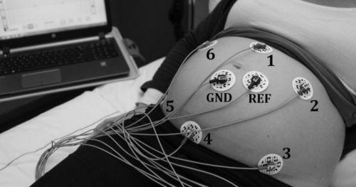 fetal-electrocardiography