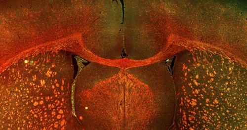 new-rat-model-neonatal-white-matter-injury