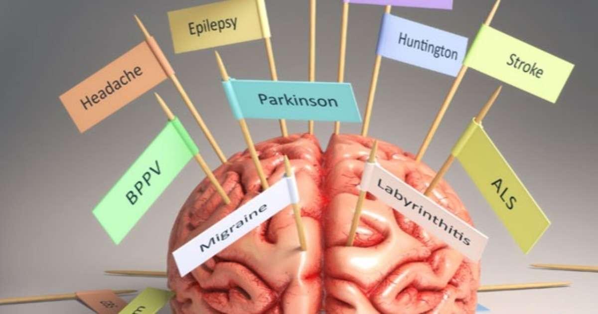 brain-research