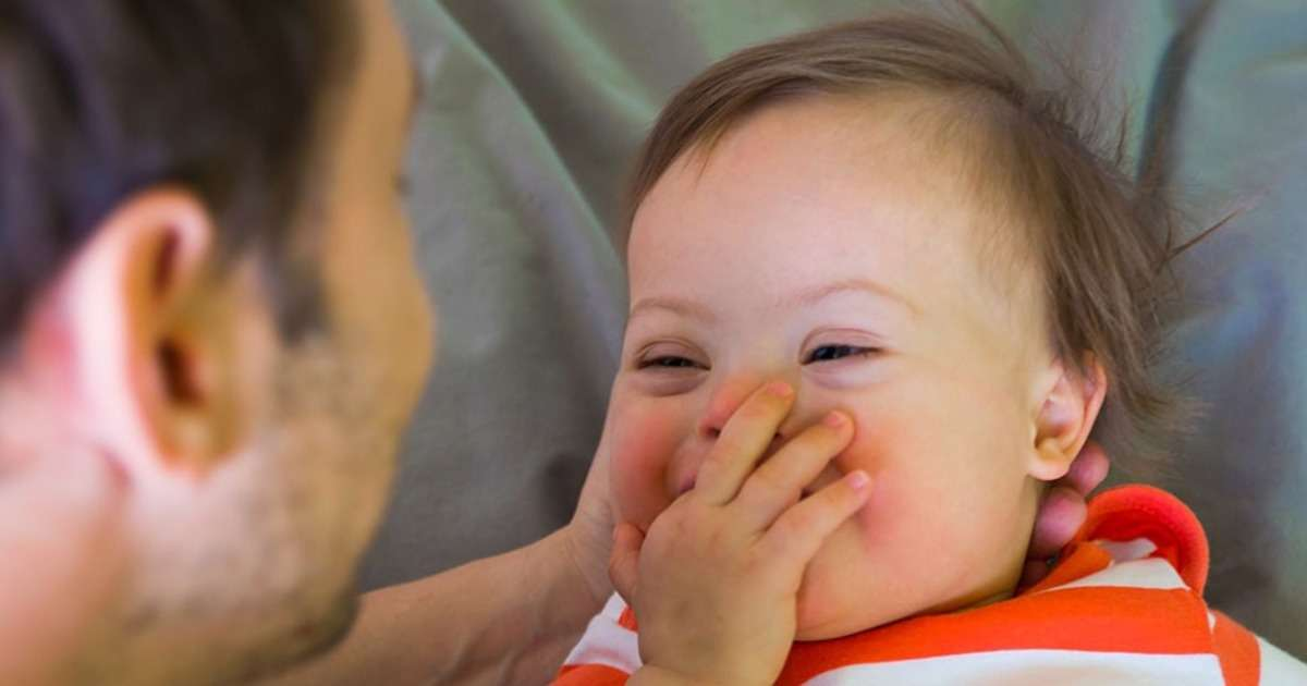 cognition-infants-down-syndrome