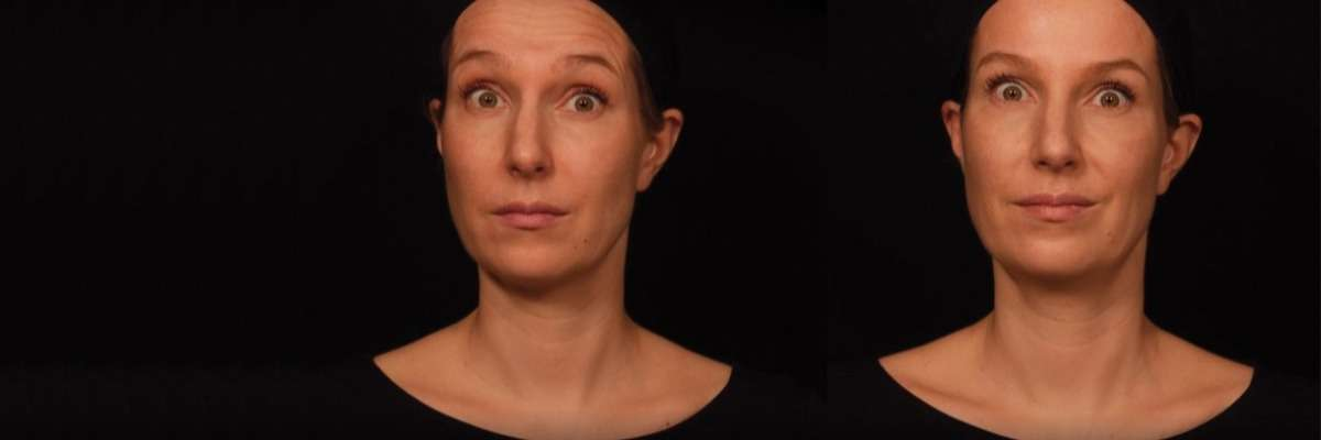 How botulinum toxin affects facial expression