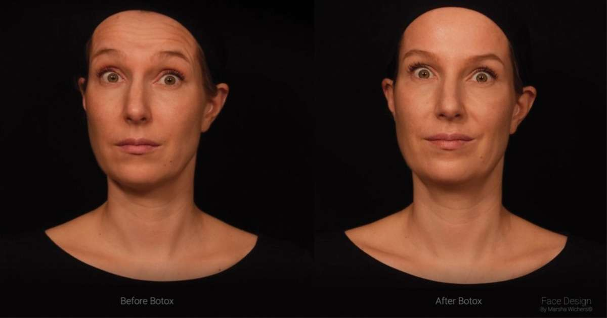 how-botulinum-toxin-affects-facial-expression