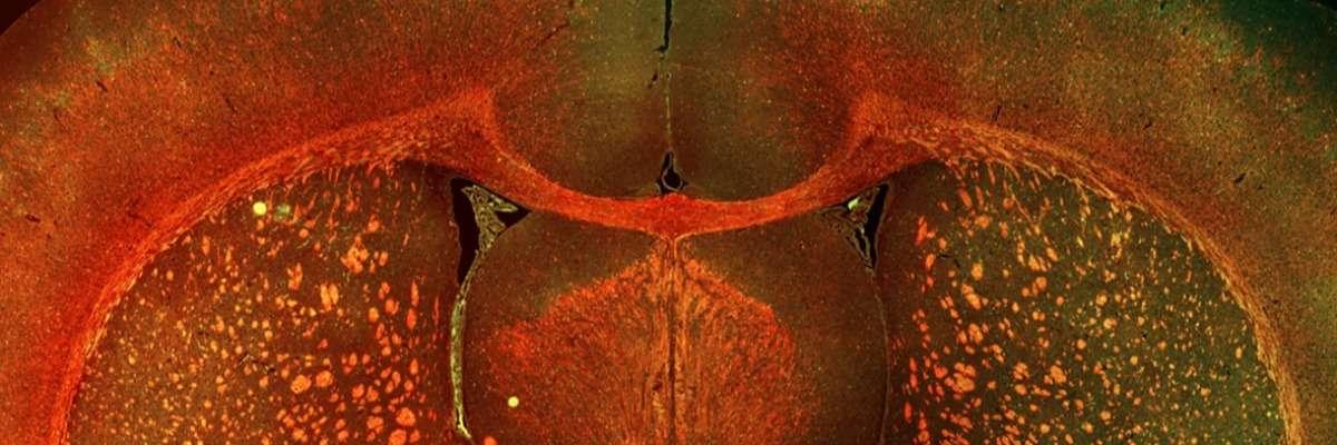 A new rat model for neonatal white matter injury