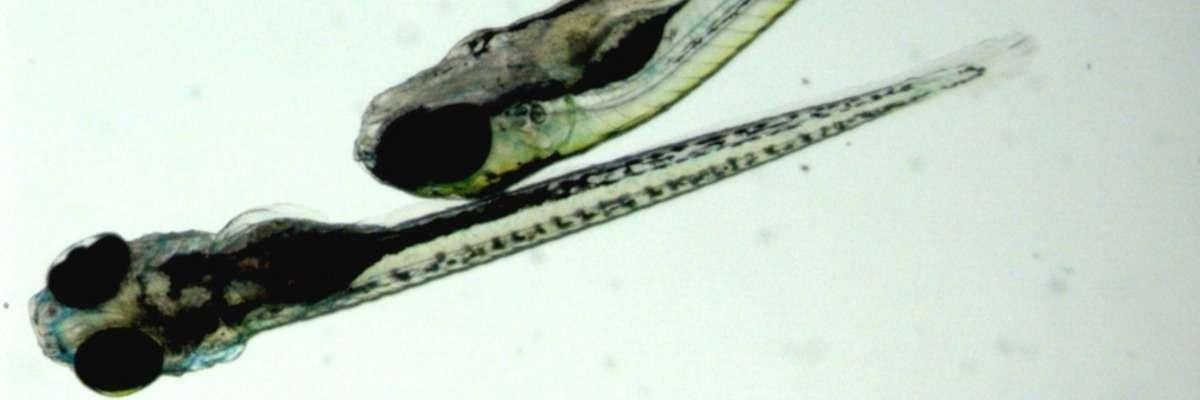 Seizing fish: a high-throughput screen for novel antiepileptic drugs